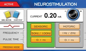 Cryo-S Painless neurostimulation mode